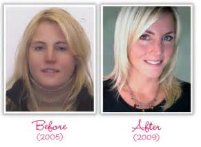 women with low thyroid levels weight loss success picture 7
