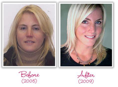 weight gain, hair loss, rash picture 10