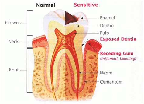 what to do for sensitive teeth picture 3