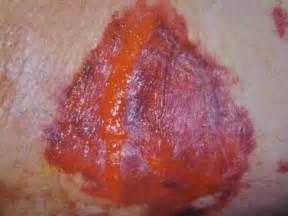 causes of changes skin condition picture 10