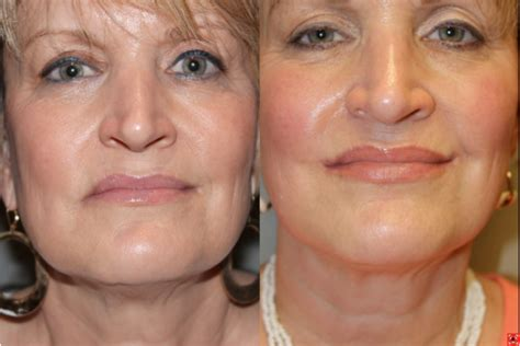 can a lip lift look natural picture 13