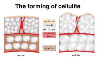 causes of cellulite picture 5
