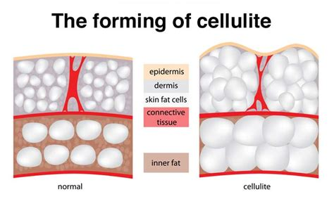 what causes cellulite picture 7