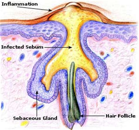 why do boils occur on the body picture 6