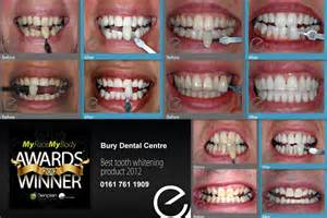 fairfield teeth whitening picture 7