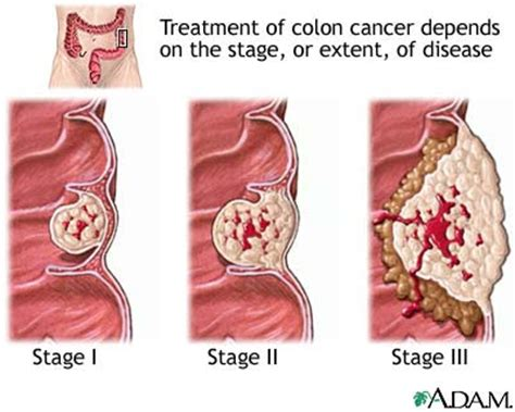 colon cancer 4 stage picture 14
