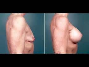 transgendered woman breast development picture 1