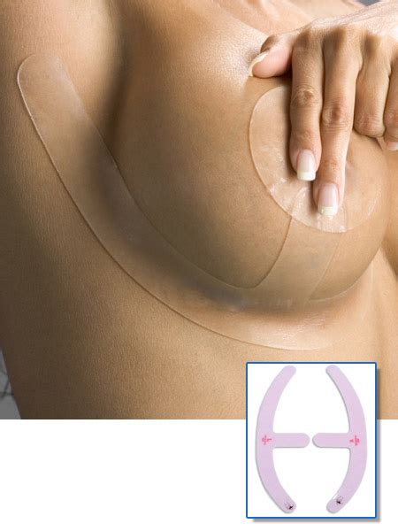 after mastopexy breast is uneven picture 7