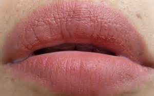 genital lip warts picture 5