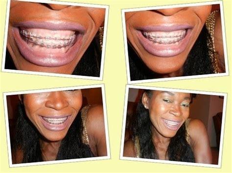 whiten teeth light picture 7