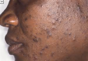 dark pimples on the skin picture 18