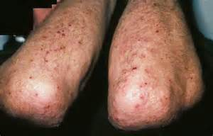 genital herpes pictures vagina picture 2
