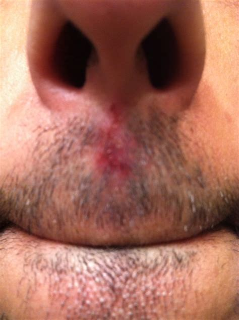 herbal dr in san gabriel specialize in herpes picture 6