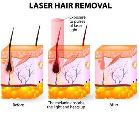 cincinnati laser hair picture 7