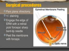 best supplements for epiretinal membrane picture 13