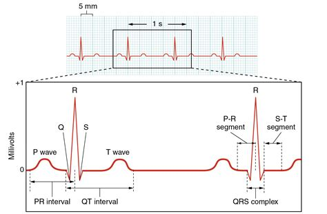 does ecg directly measure action potentials in muscle picture 10