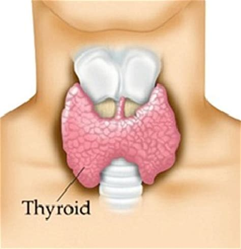 low active thyroid picture 5