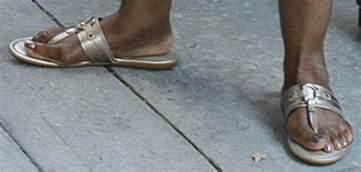 dark skin on feet picture 15