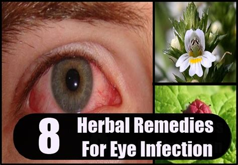 herbal remedy for eye infection picture 3