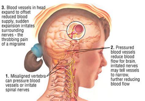 florida headache pain relief picture 3