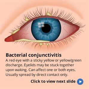 symptoms viral conjunctivitis bacterial conjunctivitis picture 3