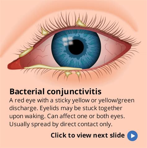 will bacterial pink eye reside picture 2