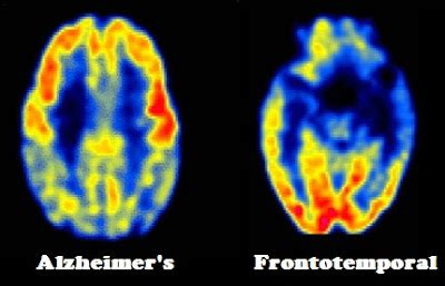 frontotemporal dementia blood flow picture 7