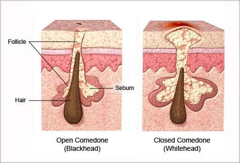 orgasm acne treatment picture 7