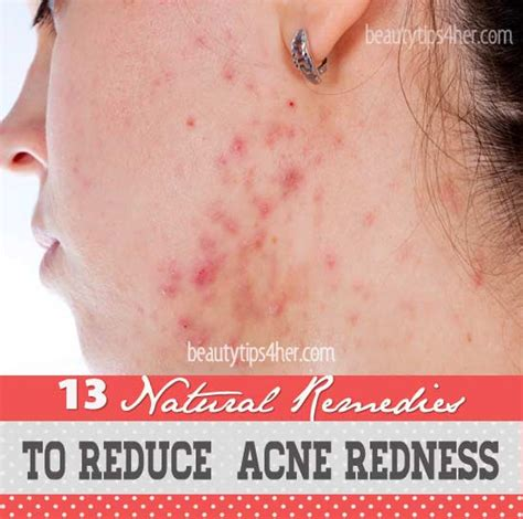 cure for red spots from acne picture 11