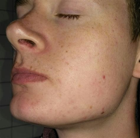 acne marks wont picture 5