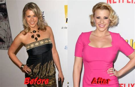 candace dold breast enhancement picture 11
