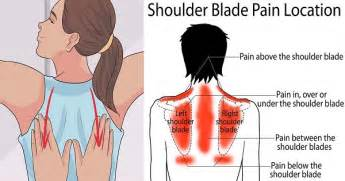 pain in between shoulder blades can being a picture 7