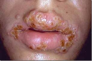 herpes and chlymadia picture 7