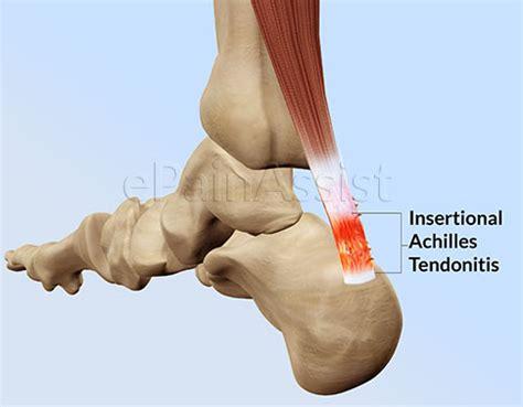 heel pain relief picture 5
