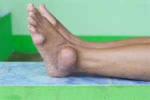 gout pain relief picture 1