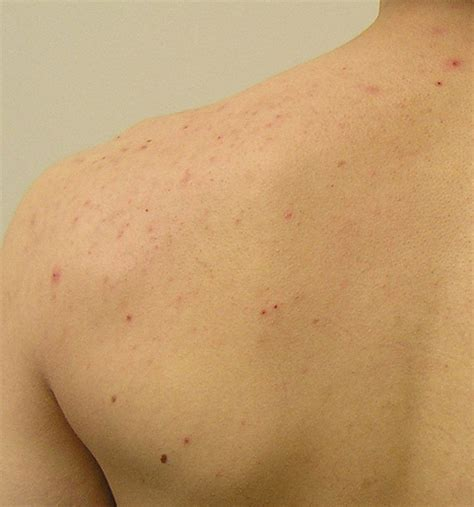 acne on back picture 6