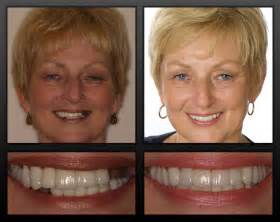 do h implants fail picture 7