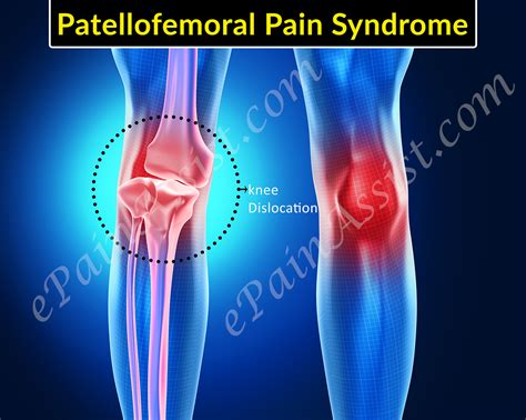 femoral joint pain picture 2
