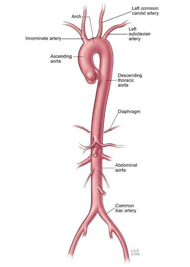 leaking anastomosis signs and symptoms picture 6
