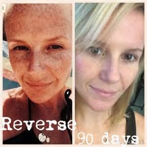 anti aging regimen picture 3