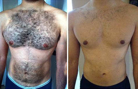 how much does laser hair removal cost picture 9
