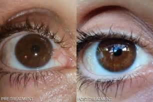 dipyridamole eye drops reviews picture 1