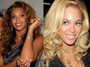 beyonce bleached skin picture 1