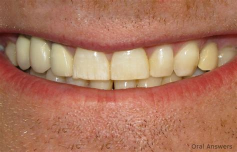 chalky teeth picture 9