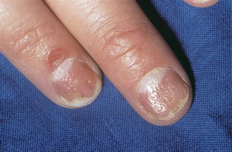 fungus nail picture 10