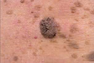 do warts turn white before falling off picture 7