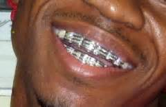 chamillionaire's teeth picture 1