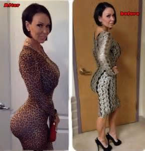 doctor who does hip enlargement in kenya picture 11