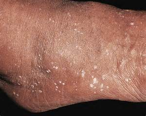 white spots on skin can be dehydraytion picture 15