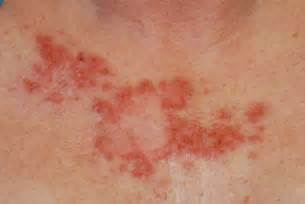 basal skin ancer picture 6